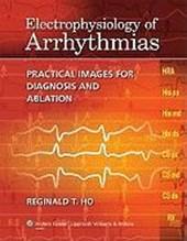 Electrophysiology of Arrhythmias