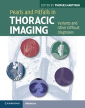 Pearls and Pitfalls in Thoracic Imaging