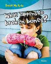 What Happens to Broken Bones?