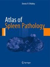 Atlas of Spleen Pathology