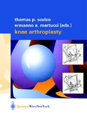 Knee Arthroplasty