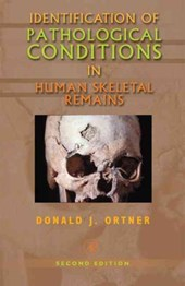 Identification of Pathological Conditions in Human Skeletal