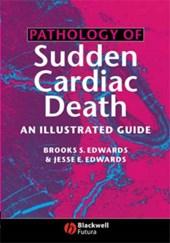 Pathology of Sudden Cardiac Death