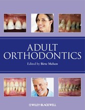 Adult Orthodontics | Birte Melsen |