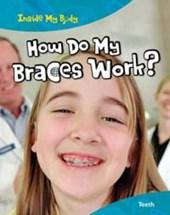 How Do My Braces Work?
