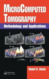 Microcomputed Tomography | Stuart R. Stock |