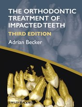 Orthodontic Treatment of Impacted Teeth | Adrian Becker |
