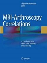 MRI-Arthroscopy Correlations | auteur onbekend |