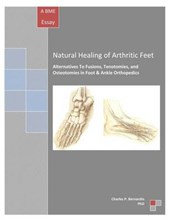 Natural Healing of Arthritic Feet