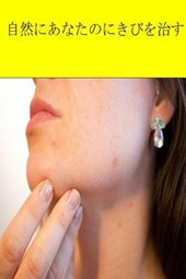 Cure Your Acne Naturally