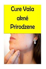 Cure Your Acne Naturally | Portia White |