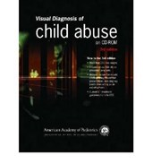 Visual Diagnosis of Child Abuse