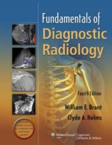Fundamentals of Diagnostic Radiology, in One Volume | William E Brant |