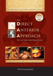 The Direct Anterior Approach to Hip Reconstruction