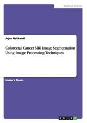 Colorectal Cancer MRI Image Segmentation Using Image Processing Techniques
