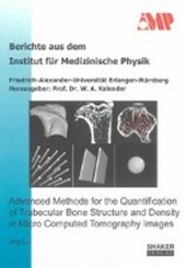 Advanced Methods for the Quantification of Trabecular Bone Structure and Density in Micro Computed Tomography Images