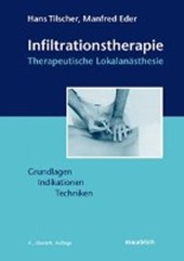 Infiltrationstherapie