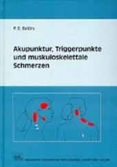 Akupunktur, Triggerpunkte und muskoskelettale Schmerzen