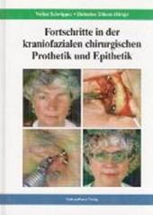 Fortschritte in der kraniofazialen chirurgischen Prothetik und Epithetik