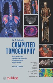 Computed Tomography | Willi A. Kalender |