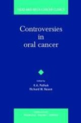 Controversies in Oral Cancer | Kumar Alok Pathak |