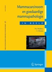 Mammacarcinoom en goedaardige mammapathologie in beeld